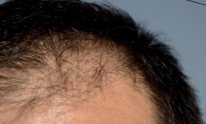 AGAの原因遺伝子は2つ!薄毛が進行する仕組みを理解しよう! イメージ画像