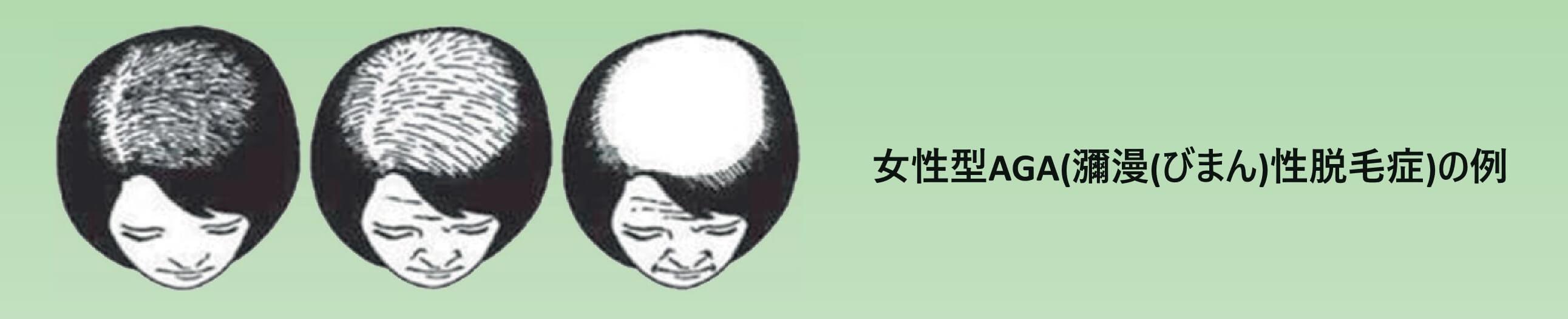 女性型脱毛症(FAGA)の薄毛パターン イメージ画像