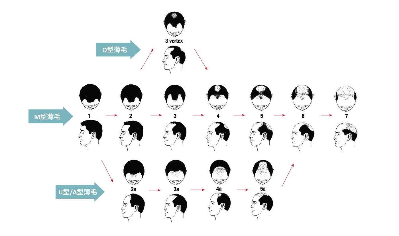AGA薄毛におけるハミルトン・ノースウッド分類 イメージ画像