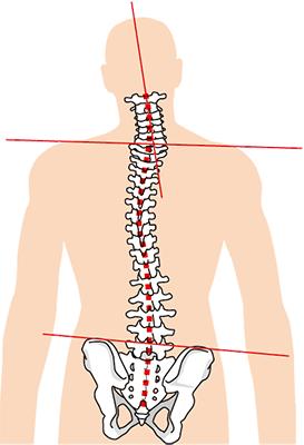 骨盤の歪みが上半身に影響する